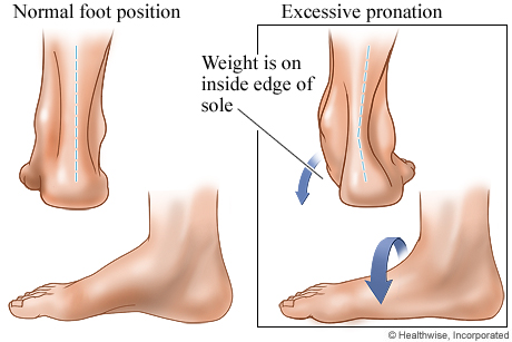 Foot posture and its relation to hip pain