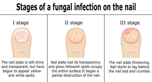 Stages of fungal toenail infection. Start fungal nail treatment as early as possible!