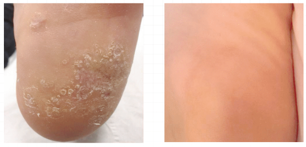 Swift Microwave Therapy Wart Treatment