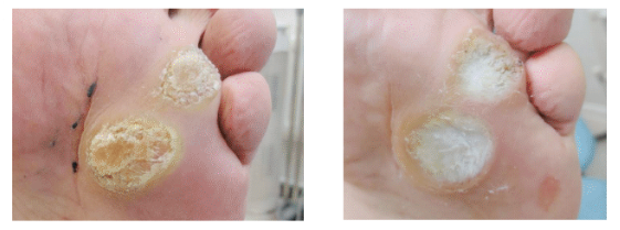 Plantar warts before and after Swift Microwave Therapy