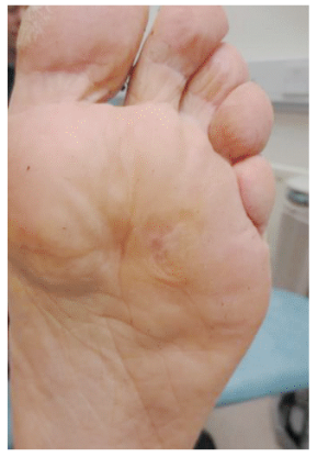 Plantar warts after Swift Microwave Therapy