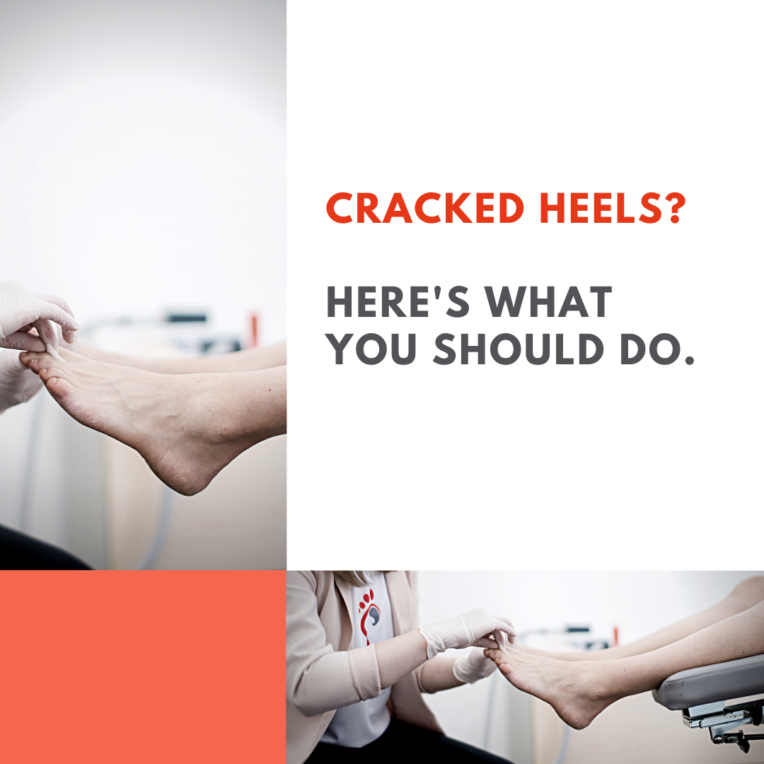 Cracked heels? Here is what you should do