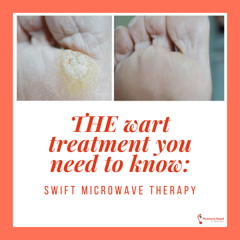 The Wart Treatment You Need to Know: Swift Microwave Therapy