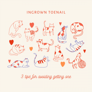 Ingrown Toenail – 3 Tips for Avoiding Getting One