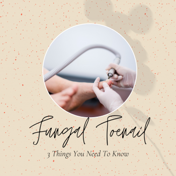 Fungal Toenail Infection: 3 Things You Need to Know