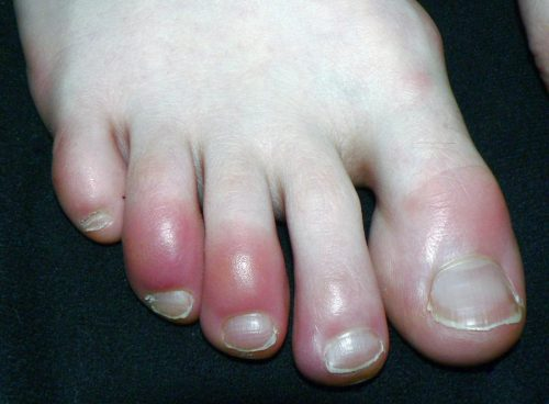 Chilblains on toes. They look like red, raised bumps.